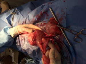 Tumors during surgery